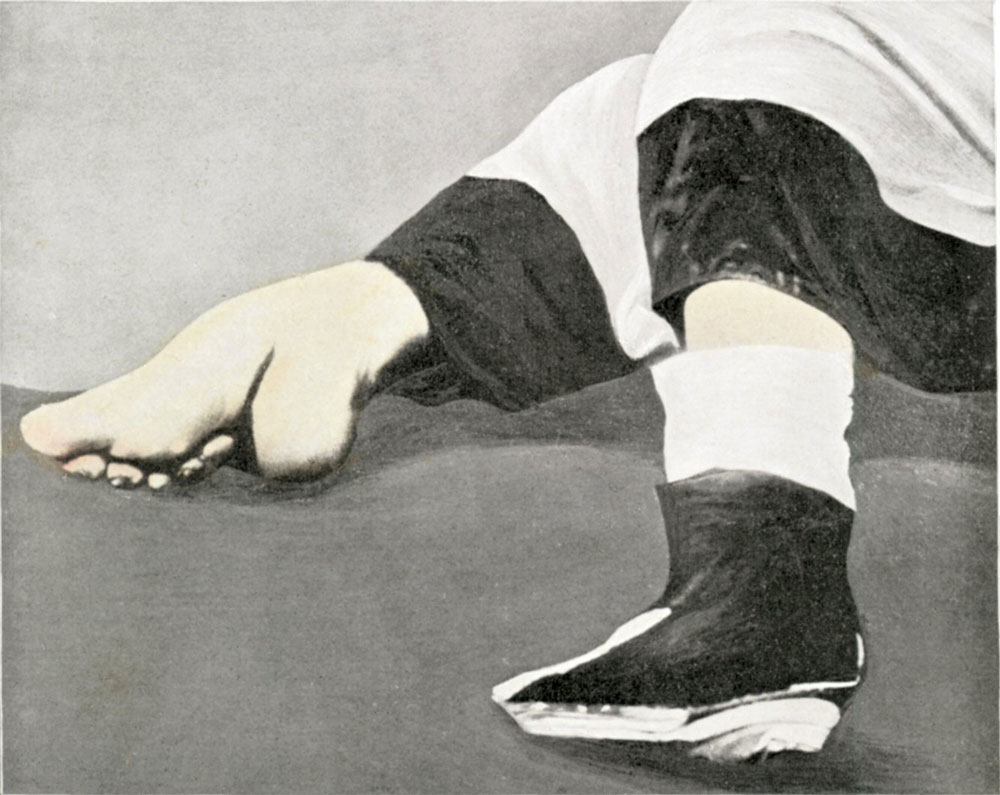 Foot-binding-in-China-1911