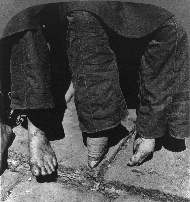 A comparison between a woman with normal feet (left) and a woman with bound feet in 1902
