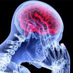 Surgeons transplant a human head in China