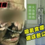 A man in China accidentally lit himself when smoking in a hospital, wearing an oxygen mask